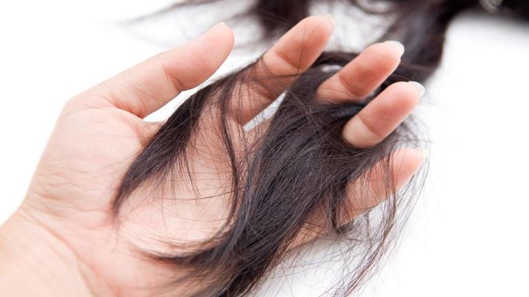 Tiền mãn kinh có triệu chứng gì? Chị em bị rụng nhiều tóc hơn khi estrogen giảm