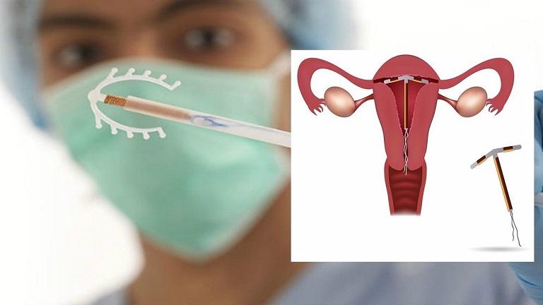 Nếu không muốn mang thai khi sắp mãn kinh, chị em hãy sử dụng biện pháp tránh thai