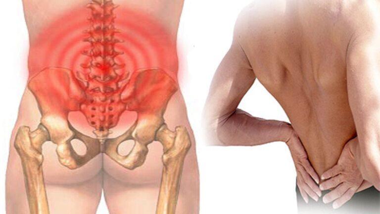 Hội chứng thắt lưng hông hình thành do nhiều yếu tố