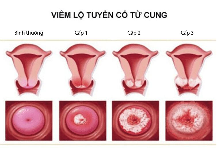 Nhận biết tình trạng viêm lộ tuyến cổ tử cung theo nhiều cấp độ